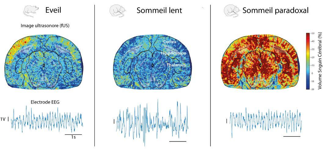 Los tres estados del cerebro: despierto (izquierda), sueño lento y paradójico. Fuente: INSERM