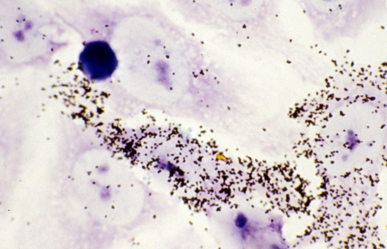 Hibridación in situ del ARN del VIH en las células inmunitarias infectadas. Imagen: Inserm.