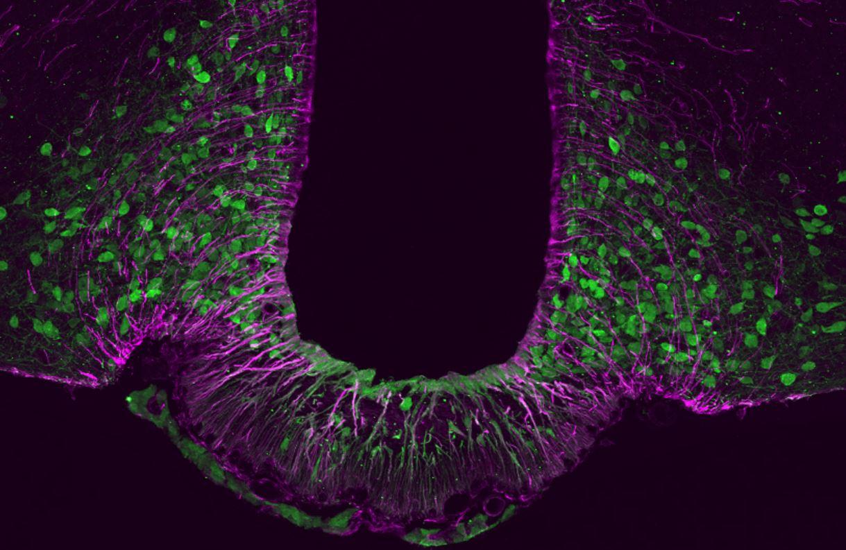 La proteína Tbx3 (en verde) desempeña un papel crucial para la función y el mantenimiento de las neuronas de saciedad en el cerebro. Imagen: Helmholtz Zentrum München.