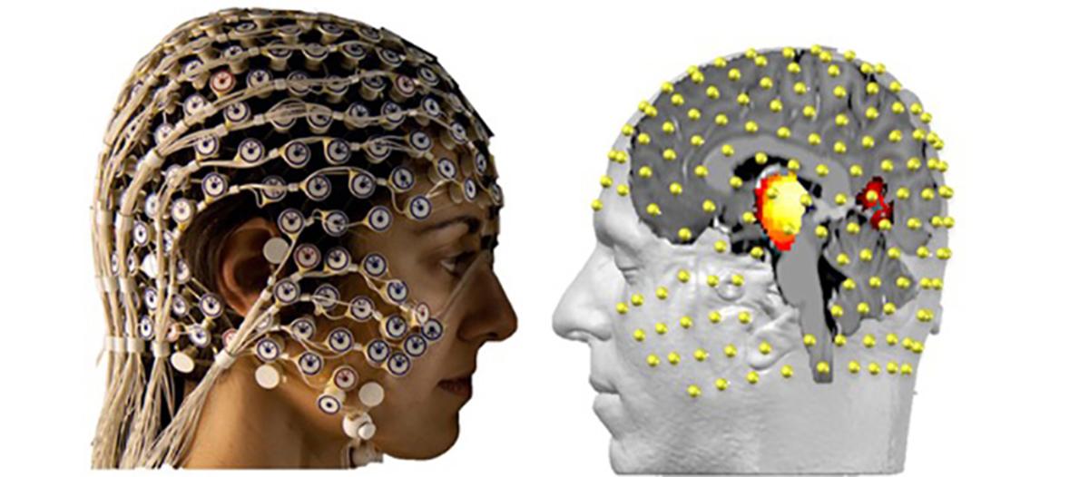 El electroencefalograma registra de manera no invasiva la actividad eléctrica del cerebro a través de 256 electrodos colocados en el cuero cabelludo. Con la ayuda de algoritmos matemáticos combinados con imágenes anatómicas, se puede ver lo que está sucediendo en las profundidades de nuestro cerebro, sin tener que entrar directamente. © UNIGE