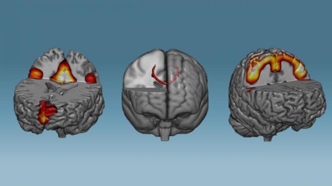 Las redes neuronales que mostraron una mayor conectividad después de una hora de neurofeedback: redes en modo predeterminado (izquierda), cuerpo calloso (medio) y redes sensoriomotoras (derecha).Imagen: Instituto D'Or de Pesquisa e Ensino (IDOR).