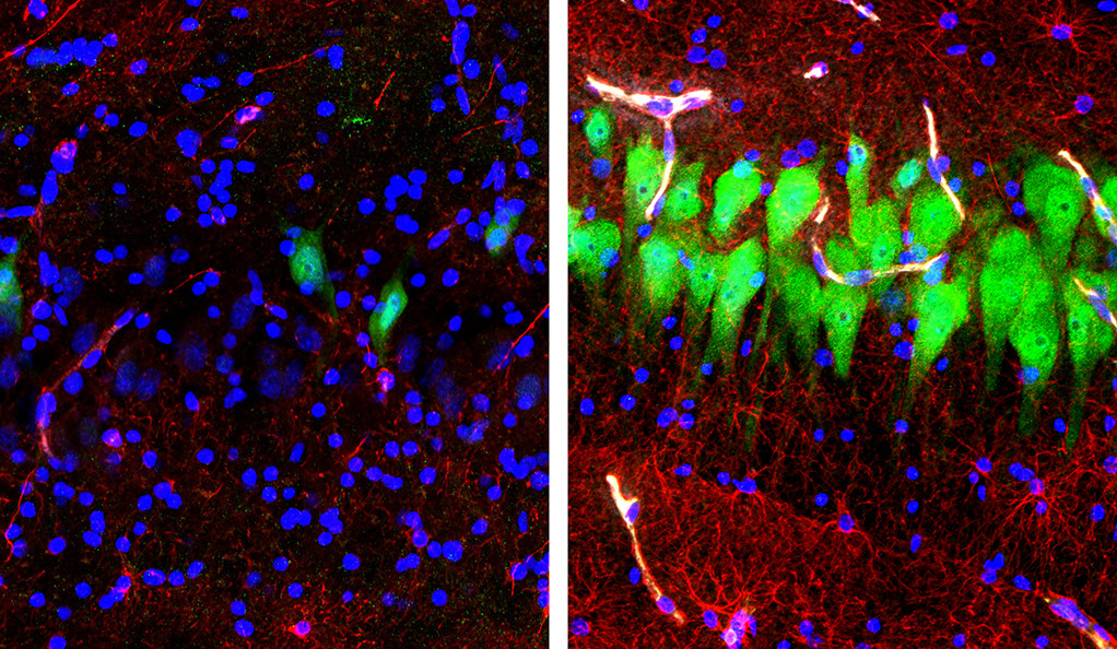 Región del hipocampo del cerebro de un cerdo del experimento. A la izquierda, antes del tratamiento, se aprecian en verde las neuronas y en rojo los astrocitos (células gliales fundamentales para la actividad nerviosa). A la derecha, ambos colores se han extendido, reflejando actividad cerebral más de cuatro horas después de la muerte del animal. Imagen: Stefano G. Daniele y Zvonimir Vrselja. Universidad de Yale.