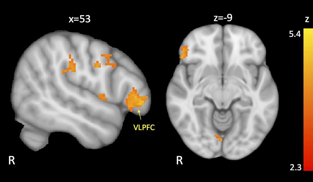 Regiones del cerebro con conectividad reducida a la amígdala. Recreación basada en la media de resultados de los participantes con autismo y comportamiento disruptivo. Imagen: Karim Ibrahim / Sukhodolsky Lab.