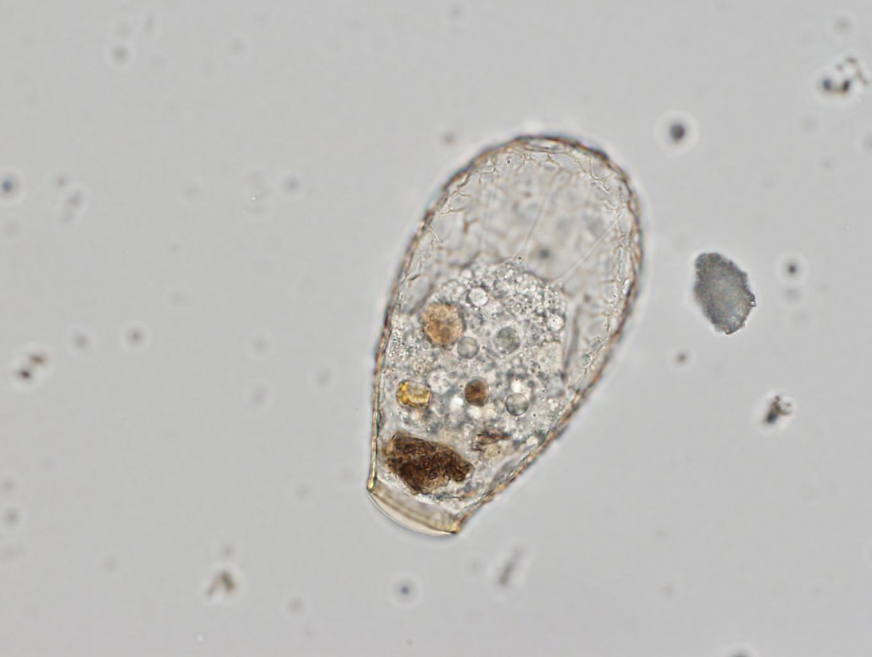 Nebela sp., un protista común en suelos forestales. Se alimenta de otros eucariotas, hongos y animales microscópicos como gusanos nematodos. Foto: Quentin Blandenier.