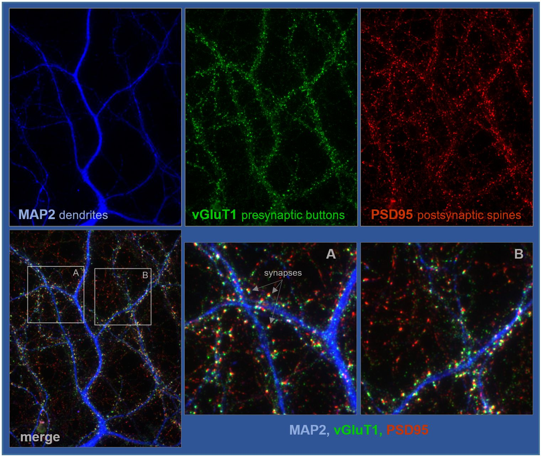 Detalle de neuronas de hipocampo crecidas durante 18 días, fijadas y procesadas para analizar sinapsis excitadoras. / UAM