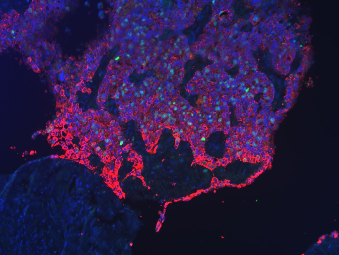 Imagen de la fluorescencia de un tumor delante del cuello uterino. Los núcleos celulares se muestran en azul y las células que se están dividiendo aparecen en verde. Las células tumorales, marcadas en rojo, se infiltran y suprimen el tejido sano. Foto: Hospital Universitario de Leipzig.