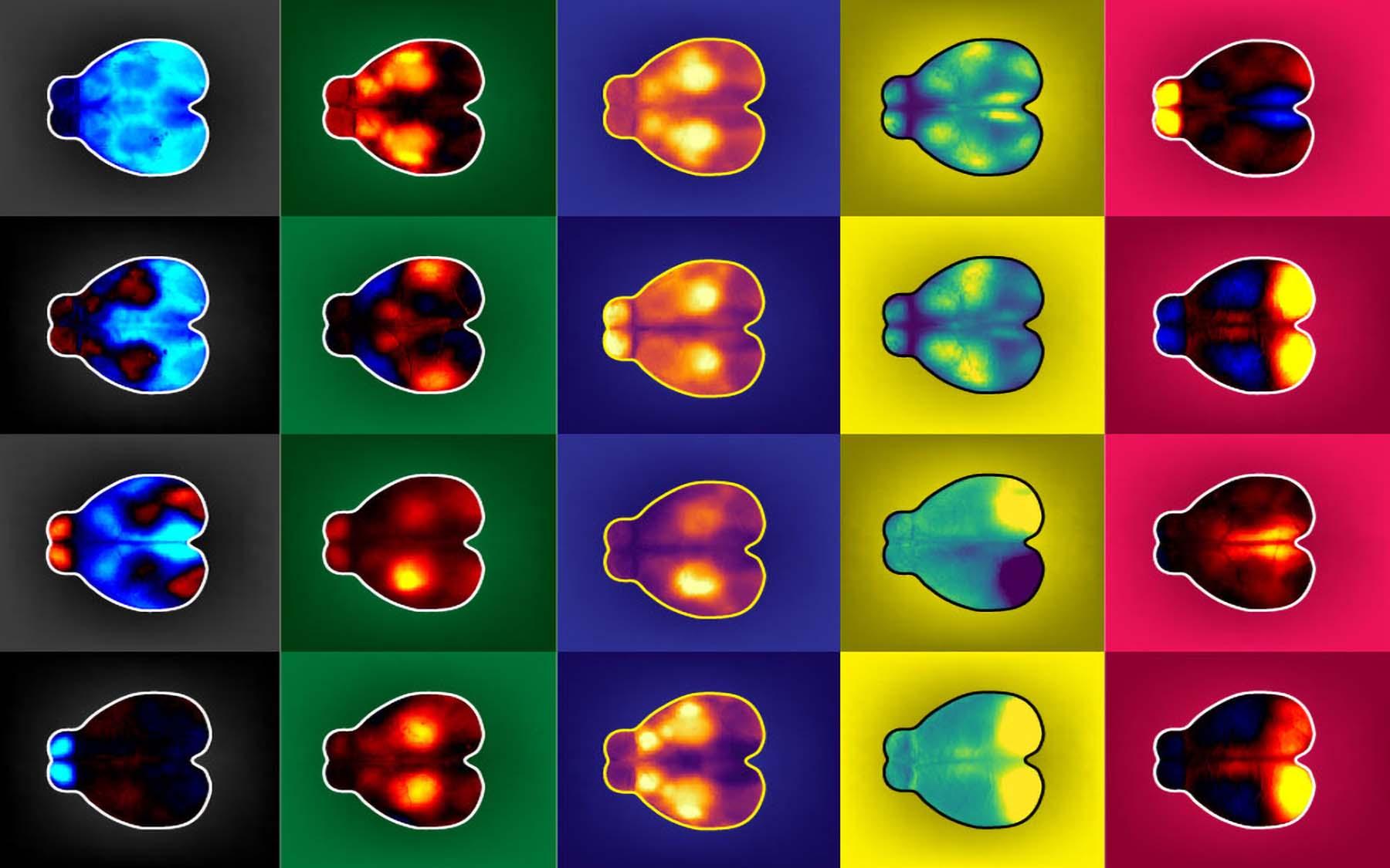 Actividad cerebral de ratones durante las tareas de toma de decisiones. Crédito: Anne Churchland.