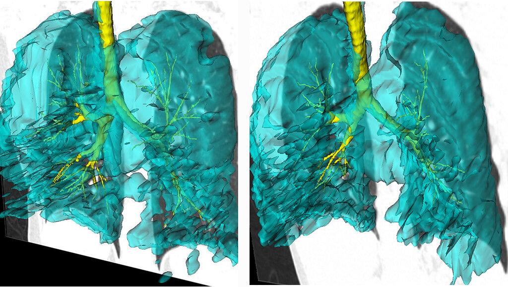 Imagen de los pulmones de dos gemelos con asma: tienen idénticos defectos de ventilación en el mismo segmento pulmonar izquierdo, que permanecieron invariables durante los siete años que duró la investigación. Crédito: Schulich Medicina y Odontología