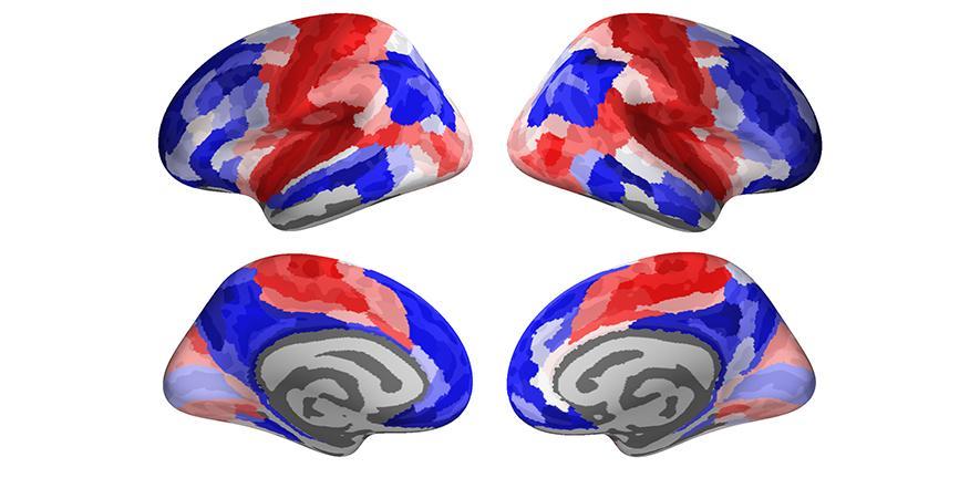 Evolución gráfica del cerebro adolescente hacia el cerebro adulto. En azul se ven las zonas que se refuerzan con la madurez y en rojo las regiones que manifiestan habilidades más avanzadas. Frantisek Vasa. Universidad de Cambridge.