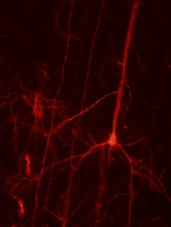 Neuronas piramidales en el hemisferio contralateral que conectan con las neuronas corticales derivadas de los precursores humanos trasplantados. Crédito: Tornero el al.