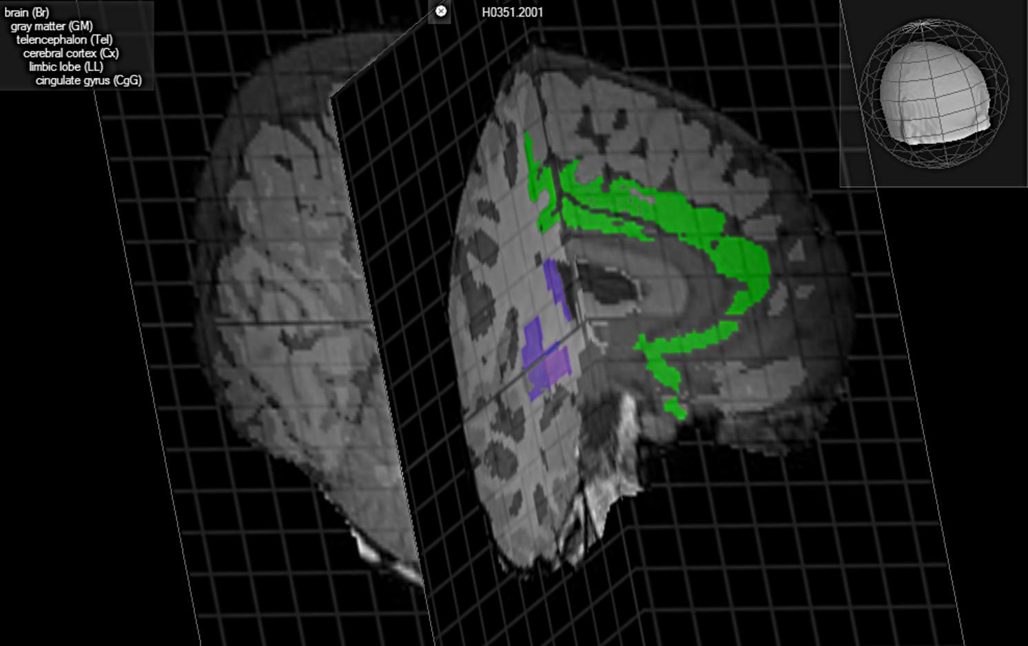 En esta representación del cerebro, aparece en azul la ubicación del claustrum, posible eslabón perdido de la consciencia. Brain Explorer, Allen Institute for Brain Science.