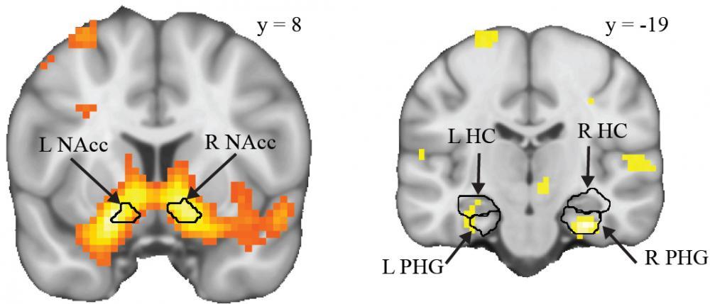 La consolidación de los recuerdos es el producto de un diálogo neuronal entre el circuito de recompensa (izquierda) y el de la memoria (derecha). UNIGE.