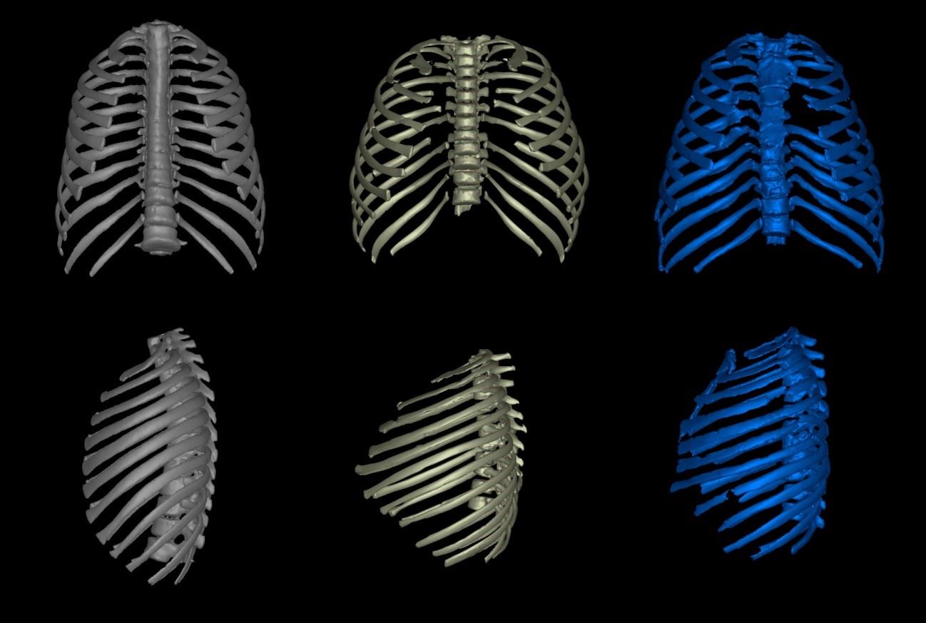 Comparativa de las cajas torácicas de un ser humano moderno, un erectus y un neandertal. M. Bastir