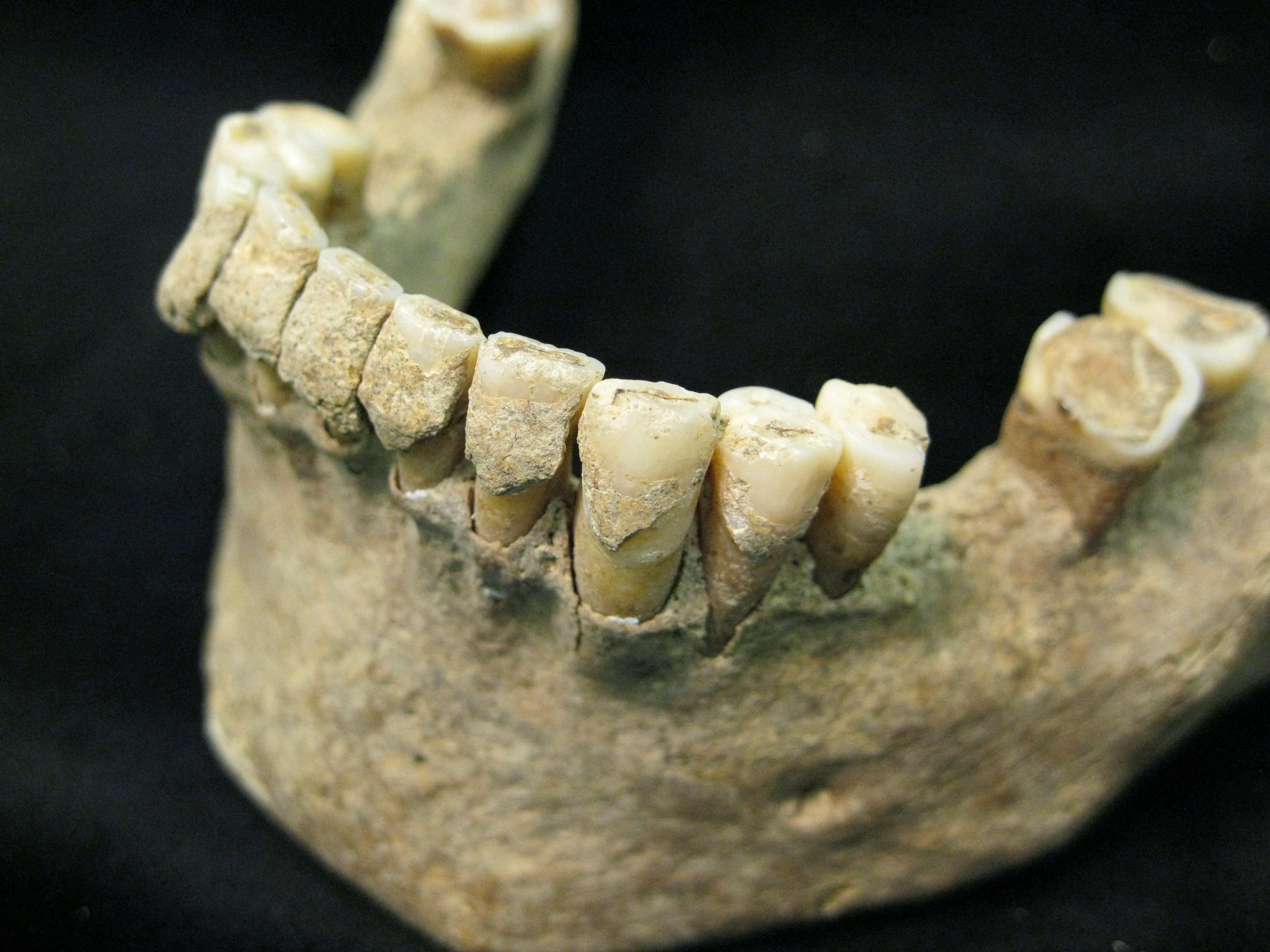 Placa dental fosilizada (cálculo) en dientes de un hombre de mediana edad del asentamiento medieval de Dalheim, Alemania. Imagen: Christina Warinner. Fuente: Universidad de York.