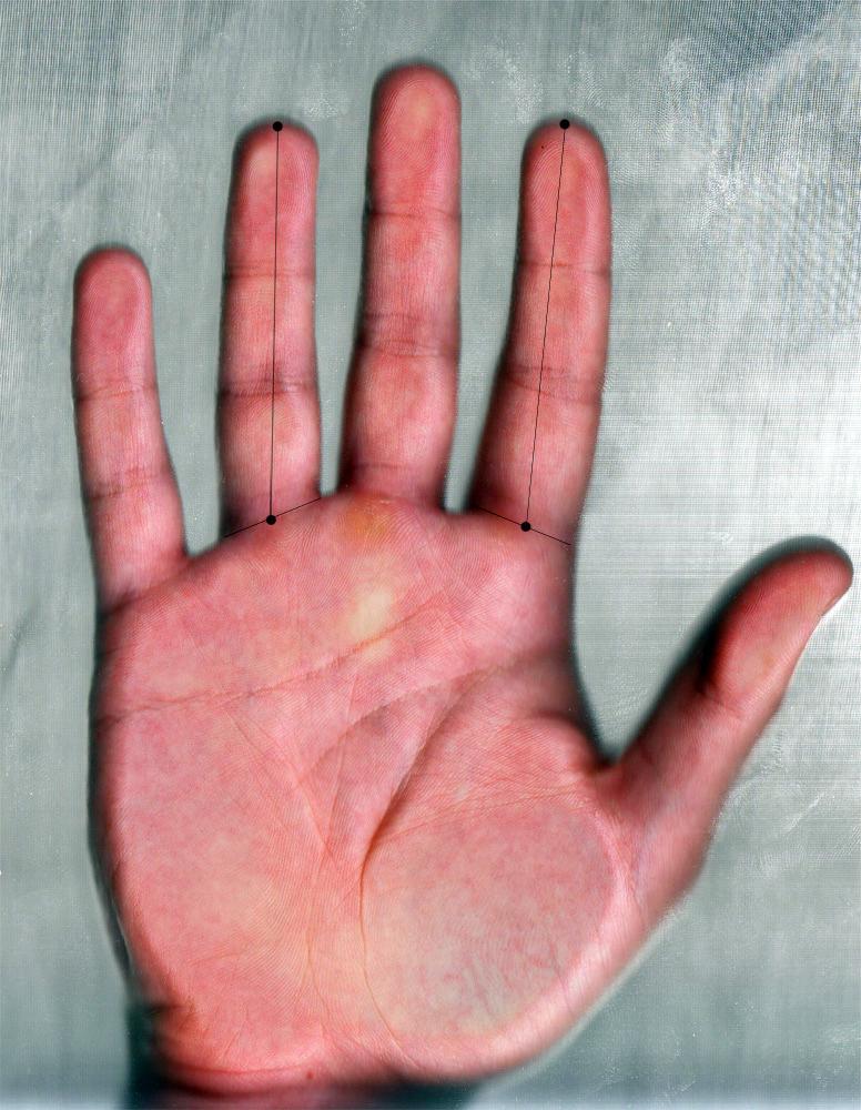 El ratio digital se obtiene al dividir la longitud del dedo índice entre la longitud del dedo anular de la misma mano. Fuente: UGR.
