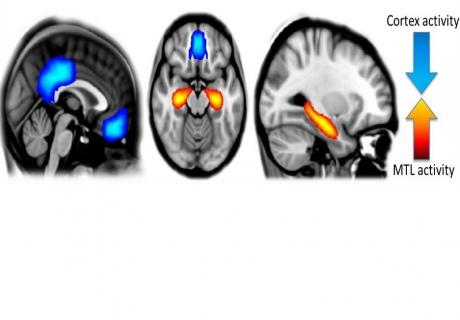 Actividad cerebral bajo el efecto de la psilocibina, con una reducción (en azul) de la actividad en las regiones cerebrales evolutivamente avanzadas, y una reducción (en naranja) en los centros de memoria y emoción. Fuente: Imperial College de Londres.