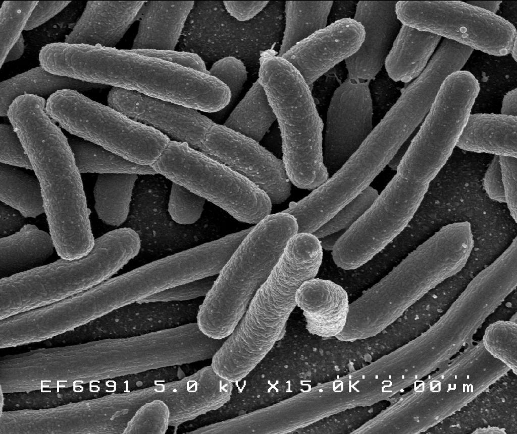 Escherichia coli, una de las muchas especies de bacterias presentes en el intestino humano. Imagen: Rocky Mountain Laboratories, NIAID, NIH - NIAID. Fuente: Wikipedia.
