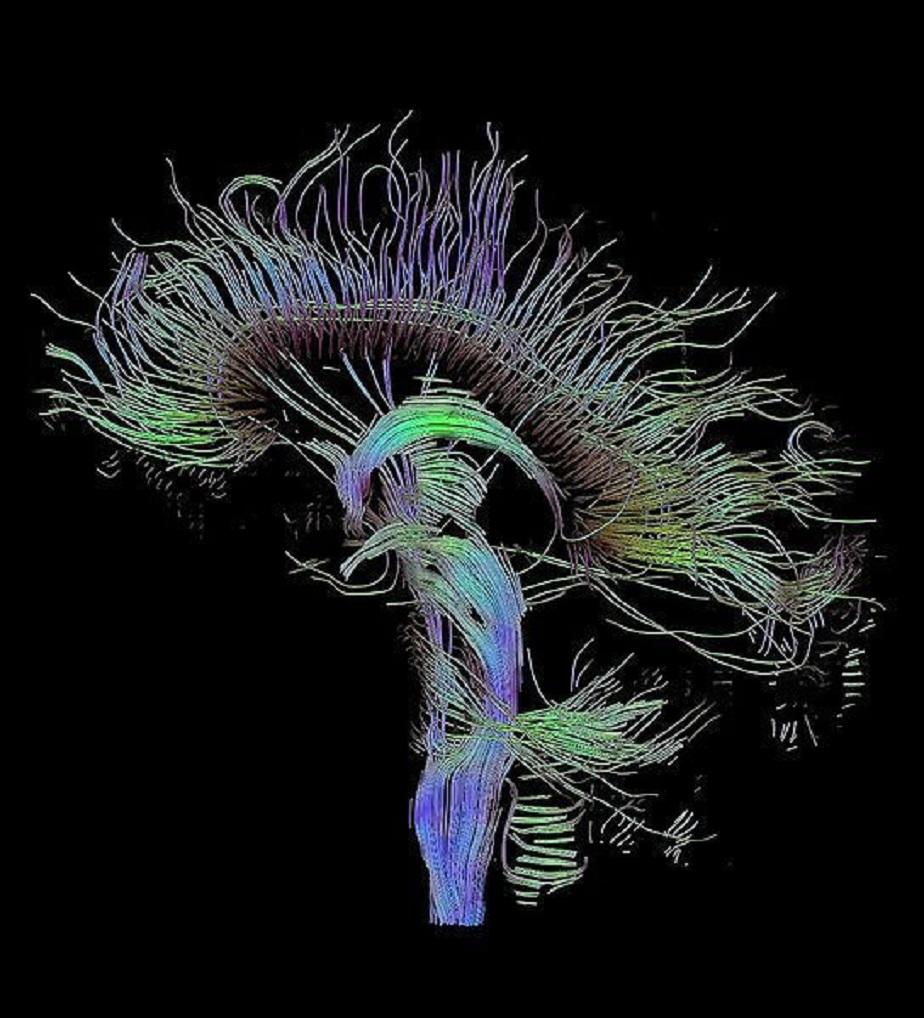Reconstrucción tractográfica de las conexiones neurales a través de imagen por resonancia magnética. Fuente: Wikimedia Commons.