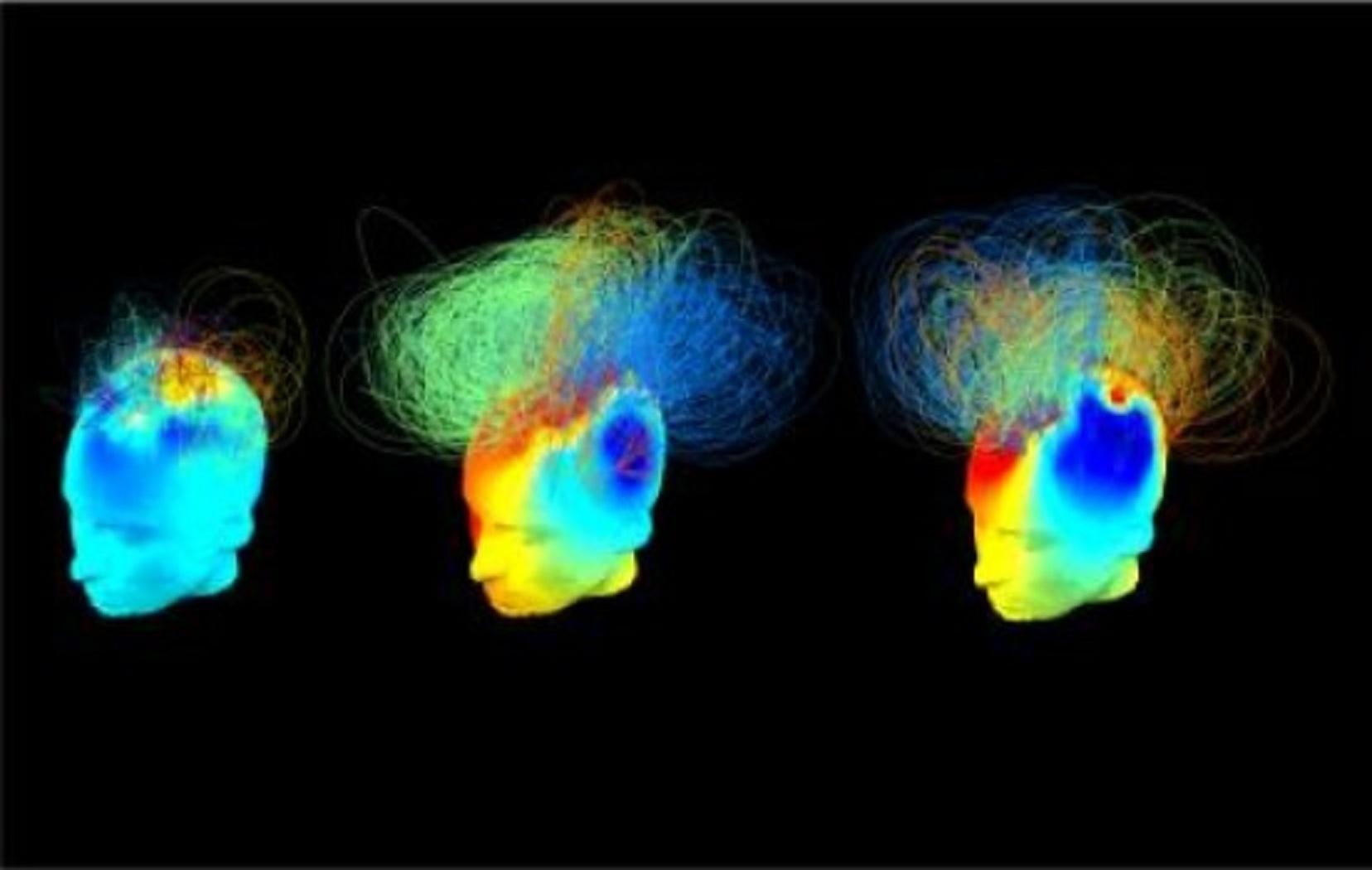 Redes cerebrales en dos pacientes en estado vegetativo (izquierda y centro) conductualmente iguales. Sin embargo, la actividad neuronal del paciente del centro cuando se le ordenó que se imaginara jugando al tenis es similar a la de la persona de la derecha (un adulto sano). Imagen: Srivas Chennu. Fuente: Universidad de Cambridge.