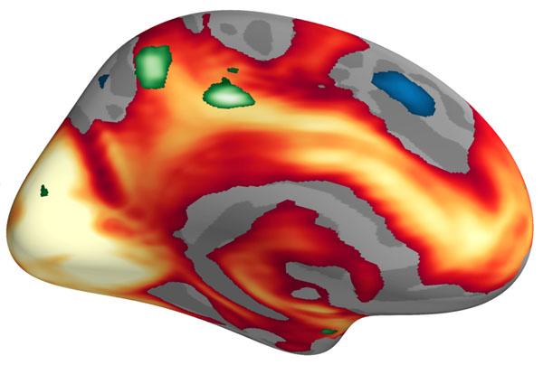 El rojo y el amarillo indican las áreas del cerebro más activas cuando las imágenes fueron valoradas como altamente estimulantes. El color verde indica las áreas que, específicamente, se volvieron más activas en las mujeres. Imagen: MCN. Fuente: Universidad de Basilea.