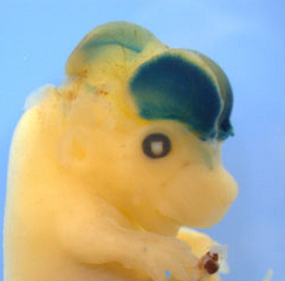 La actividad génica en el cerebro de los ratones modificados está tintada de azul. Imagen: Laboratorio de Silver. Fuente: Universidad de Duke.