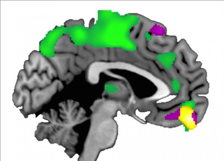 El córtex prefrontral ventromedial (amarillo) es mayor en aquellos que confían más en los demás. Imagen: Brian Hass. Fuente: Universidad de Georgia.