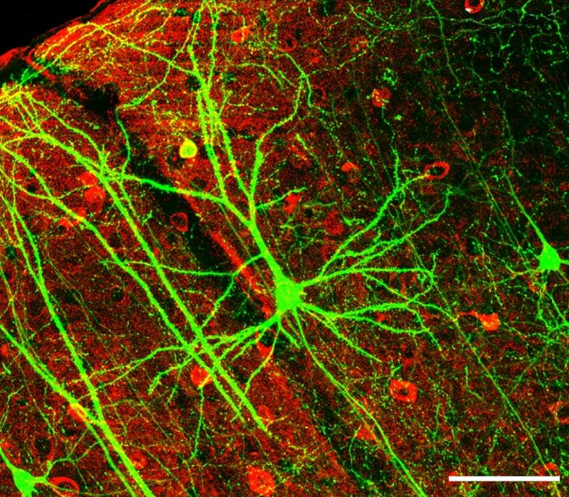 Neurona humana. Imagen: Wei-Chung Allen Lee et al. Fuente: Wikipedia.