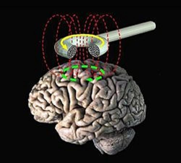 """Estimulación magnética transcraneal. Una de las técnicas utilizadas en los últimos años para """"manipular"""" el cerebro. Imagen: Eric Wassermann. Fuente: Wikipedia."""