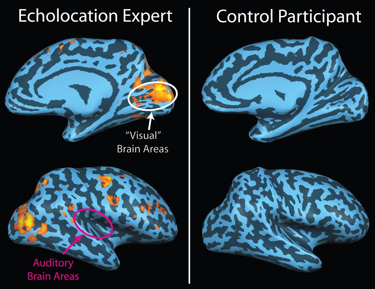 """A la izquierda, actividad relacionada con el eco en el cerebro de un ecolocador ciego. No hay actividad evidente en el cerebro de una persona vidente (derecha) escuchando los mismos ecos. Imagen: """"Brain image of blind echolocator"""", por Alan thistle. Fuente: Wikimedia Commons."""