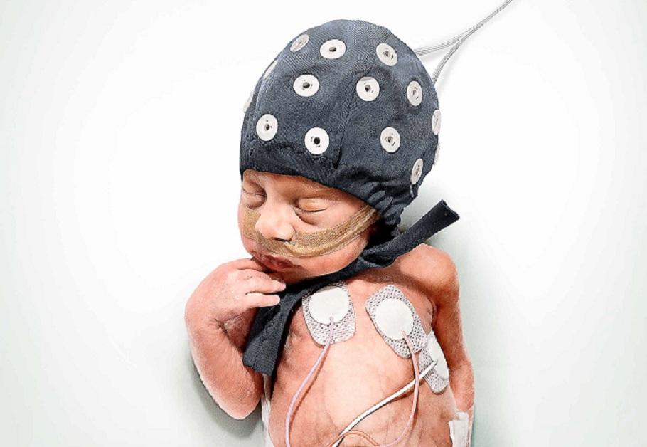 """Los investigadores han encontrado que ciertos episodios, del tipo """"lluvia de ideas"""", se producen en el cerebro de los bebés muy prematuros y son fundamentales para la maduración cerebral. Imagen: Universidad de Helsinki. Fuente: AlphaGalileo."""
