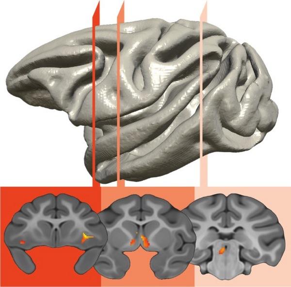 Un circuito cerebral que implica a tres regiones del cerebro es el responsable de la transferencia genética del temperamento ansioso. Fuente: Kalin Lab/Universidad de Wisconsin-Madison.