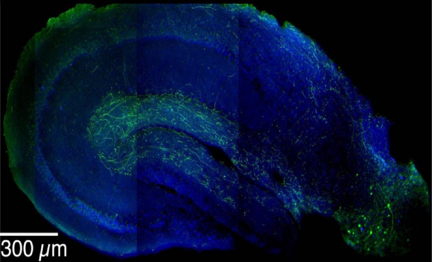 Imagen que muestra las neuronas inhibitorias LRIPs (en verde) extendiéndose desde la corteza entorrinal (en la parte inferior derecha) hacia el hipocampo. Se ha descubierto que las LRIPs forman parte de un sofisticado mecanismo crítico en la formación de recuerdos de contexto. Imagen:  Jayeeta Basu. Fuente: Mortimer B. Zuckerman Mind Brain Behavior Institute.