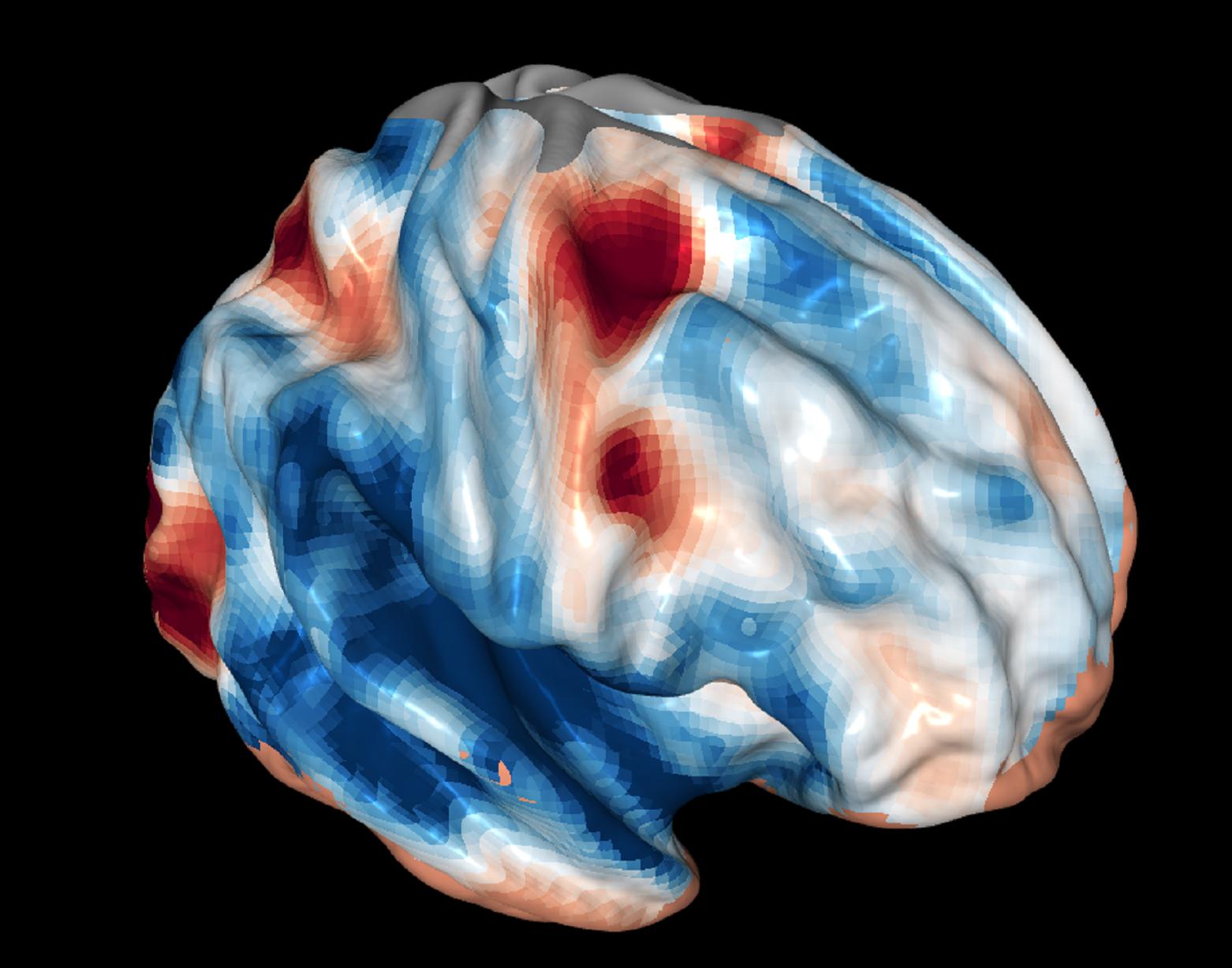 Imagen del cerebro de un escáner de resonancia magnética funcional durante pruebas del papel de la corteza frontal en la visión. Fuente: GA Tech.