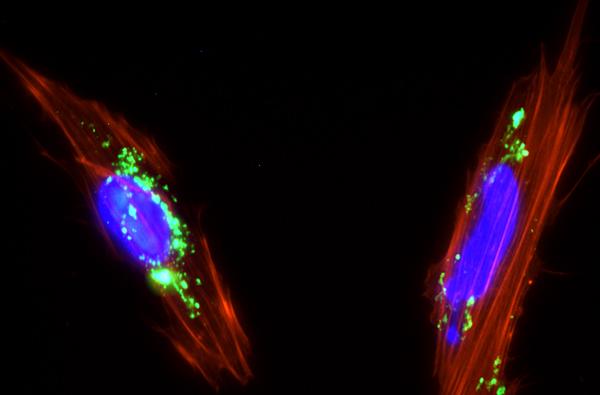 Células mesenquimales de placenta con nanopartículas de sílice mesoporosa (color verde) internalizadas en su citoplasma. Imagen: Juan Luis Paris. Fuente: UCM.