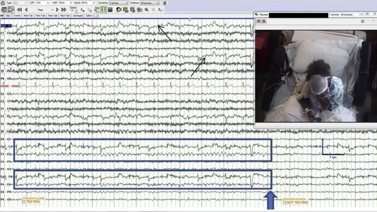 Los cuadros azules señalan el ritmo cerebral de un paciente de 22 años mientras escribía mensajes con su mano derecha. Fuente: Elsevier.