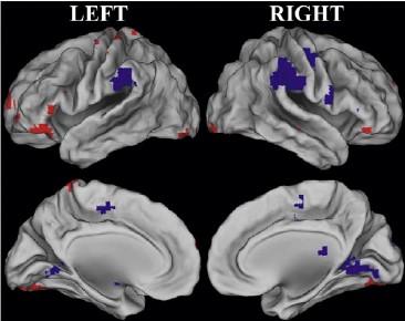 En las personas mayores, se activaban más las zonas rojas, mientras que en las jóvenes, se activaban principalmente las azules. Imagen: N. Rajah. Fuente: Universidad McGill.