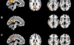 Los monolingües son más ágiles nombrando; y los bilingües tienen un cerebro más flexible